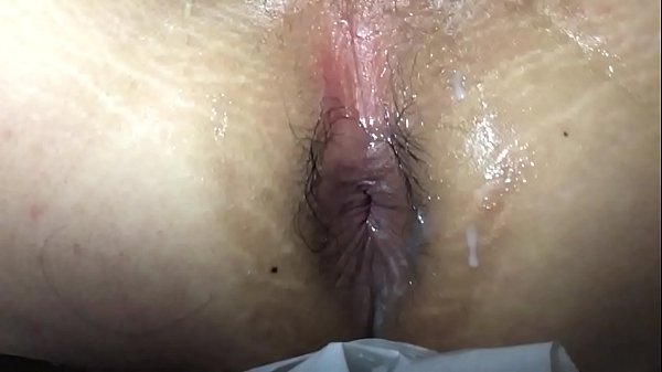 Fat anal, Anal solo